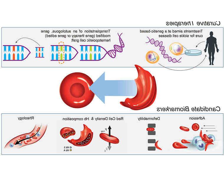 Comment traiter la drépanocytose