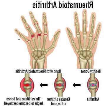 Comment traiter la polyarthrite rhumatoïde